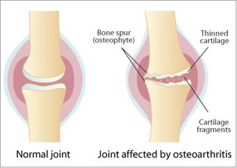 Joint affected by osteoarthritis